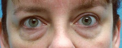 Blepharoplasty Gallery - Patient 23532697 - Image 1