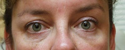 Blepharoplasty Gallery - Patient 23532697 - Image 2