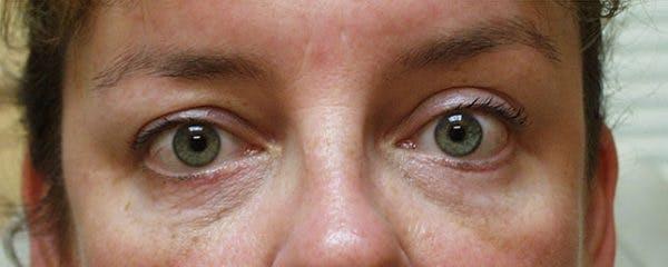 Blepharoplasty Gallery - Patient 23532697 - Image 2