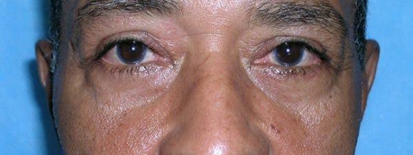 Blepharoplasty Gallery - Patient 23532699 - Image 2