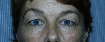 Blepharoplasty Gallery - Patient 23532701 - Image 1