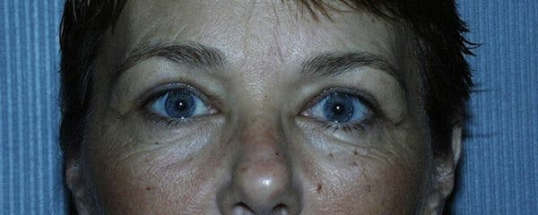 Blepharoplasty Gallery - Patient 23532701 - Image 2