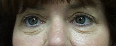 Blepharoplasty Gallery - Patient 23532702 - Image 1