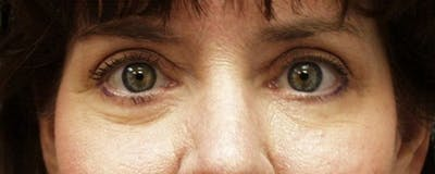 Blepharoplasty Gallery - Patient 23532702 - Image 2