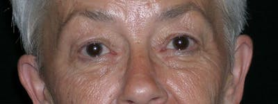 Blepharoplasty Gallery - Patient 23532707 - Image 1