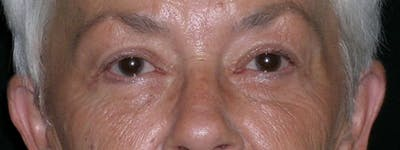 Blepharoplasty Gallery - Patient 23532707 - Image 2
