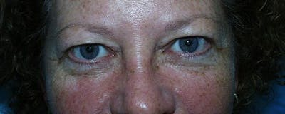 Blepharoplasty Gallery - Patient 23532714 - Image 1