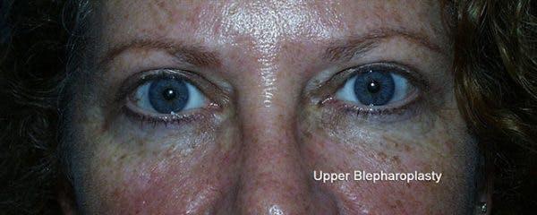 Blepharoplasty Gallery - Patient 23532714 - Image 2