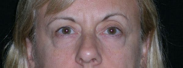 Blepharoplasty Gallery - Patient 23532716 - Image 1