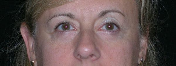 Blepharoplasty Gallery - Patient 23532716 - Image 2