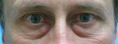 Blepharoplasty Gallery - Patient 23532721 - Image 1
