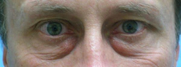 Blepharoplasty Gallery - Patient 23532721 - Image 1