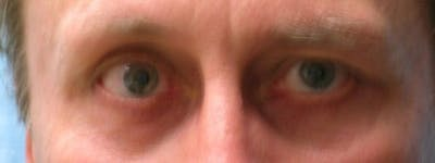 Blepharoplasty Gallery - Patient 23532721 - Image 2