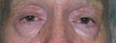 Blepharoplasty Gallery - Patient 23532727 - Image 1