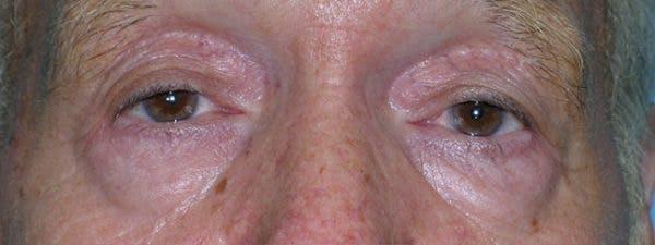 Blepharoplasty Gallery - Patient 23532727 - Image 1