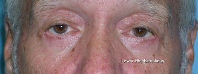Blepharoplasty Gallery - Patient 23532727 - Image 2