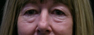 Blepharoplasty Gallery - Patient 23532728 - Image 1