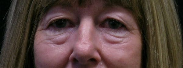 Blepharoplasty Gallery - Patient 23532728 - Image 1