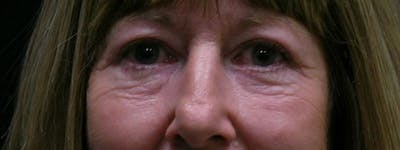 Blepharoplasty Gallery - Patient 23532728 - Image 2
