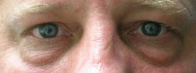 Blepharoplasty Gallery - Patient 23532738 - Image 1