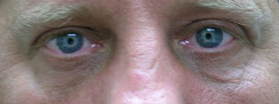 Blepharoplasty Gallery - Patient 23532738 - Image 2