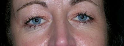 Blepharoplasty Gallery - Patient 23532741 - Image 1