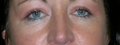 Blepharoplasty Gallery - Patient 23532741 - Image 2