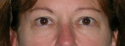 Blepharoplasty Gallery - Patient 23532751 - Image 1