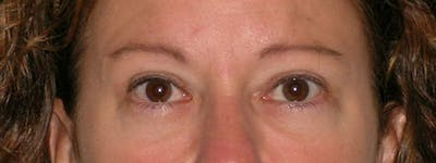 Blepharoplasty Gallery - Patient 23532751 - Image 2