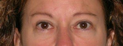 Blepharoplasty Gallery - Patient 23532751 - Image 2