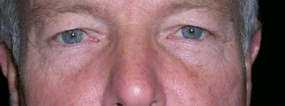 Blepharoplasty Gallery - Patient 23532756 - Image 1