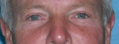 Blepharoplasty Gallery - Patient 23532756 - Image 2