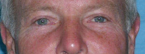 Blepharoplasty Gallery - Patient 23532756 - Image 2