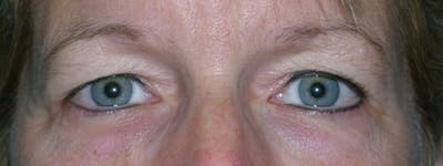 Blepharoplasty Gallery - Patient 23532758 - Image 1