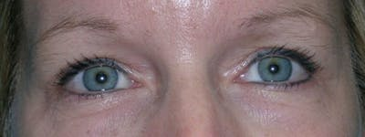 Blepharoplasty Gallery - Patient 23532758 - Image 2