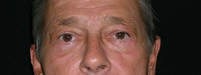 Blepharoplasty Gallery - Patient 23532759 - Image 2