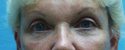 Blepharoplasty Gallery - Patient 23532768 - Image 2