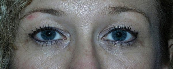 Blepharoplasty Gallery - Patient 23532770 - Image 1