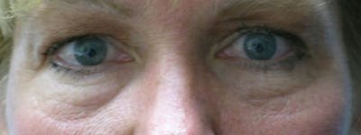 Blepharoplasty Gallery - Patient 23532771 - Image 1