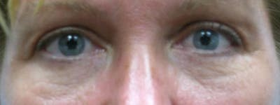 Blepharoplasty Gallery - Patient 23532771 - Image 2