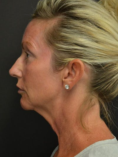 Facelift Gallery - Patient 23532948 - Image 1