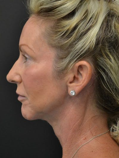 Facelift Gallery - Patient 23532948 - Image 2