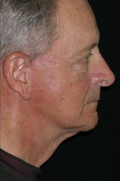 Facelift Gallery - Patient 23532949 - Image 2