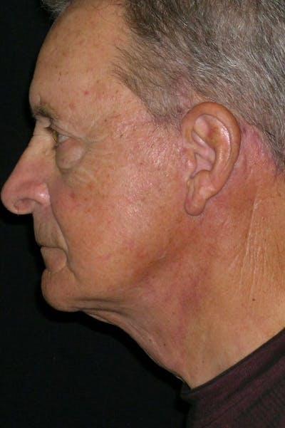 Facelift Gallery - Patient 23532949 - Image 4