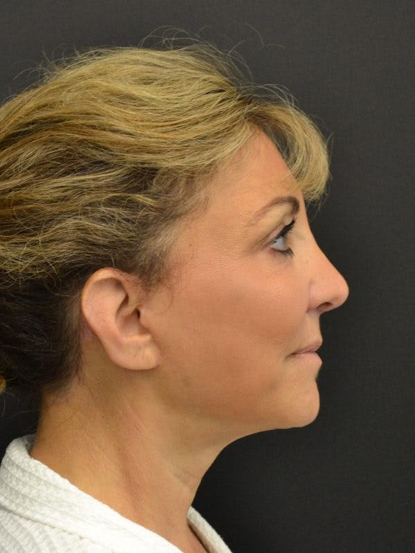 Facelift Gallery - Patient 23532951 - Image 4