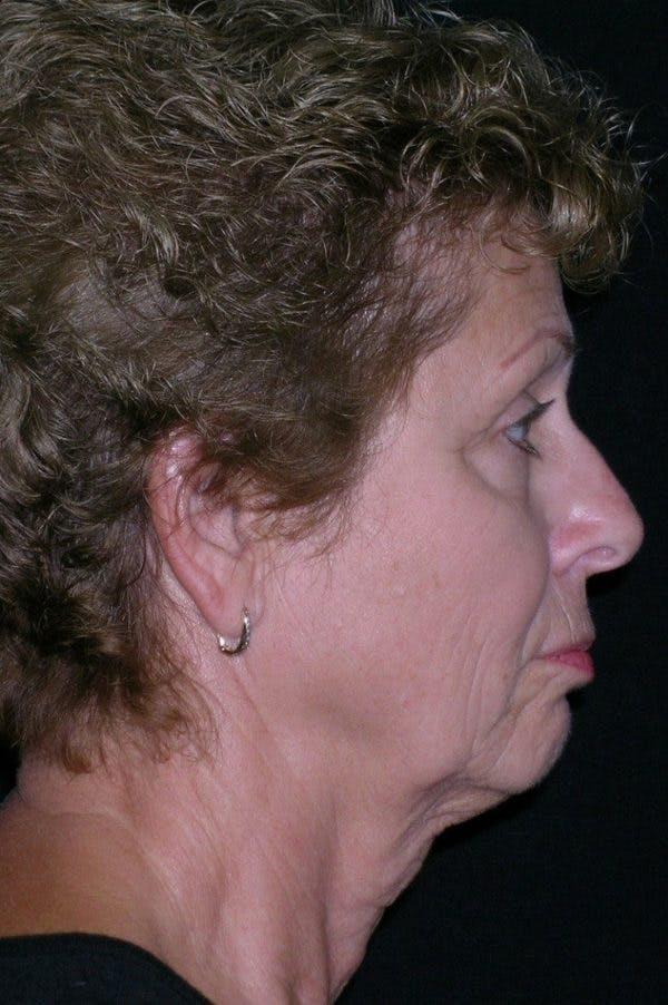 Facelift Gallery - Patient 23532952 - Image 3