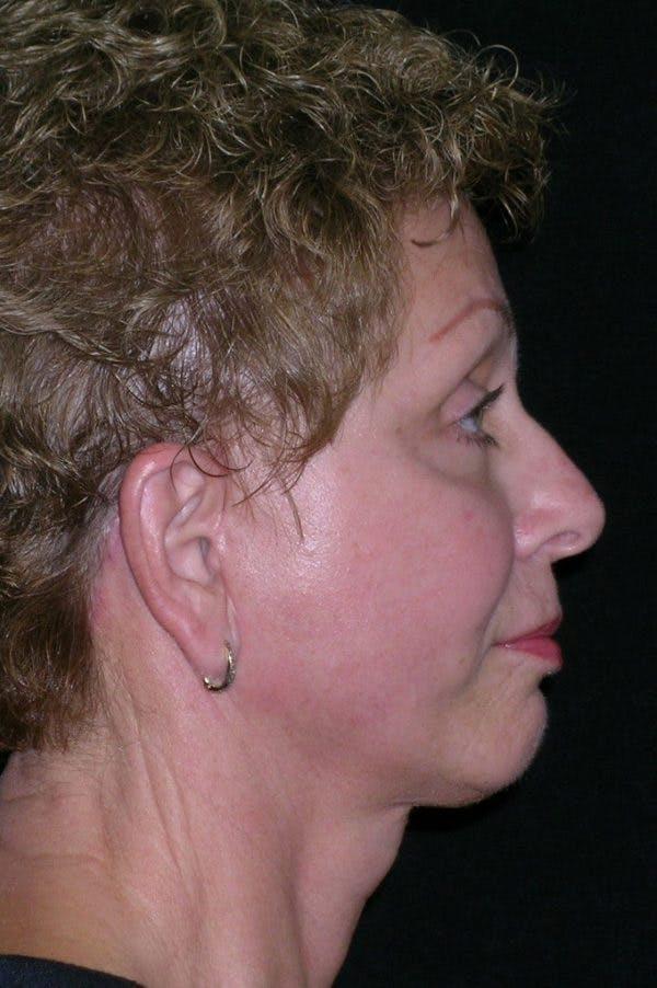 Facelift Gallery - Patient 23532952 - Image 4