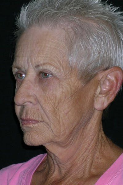 Facelift Gallery - Patient 23532954 - Image 1