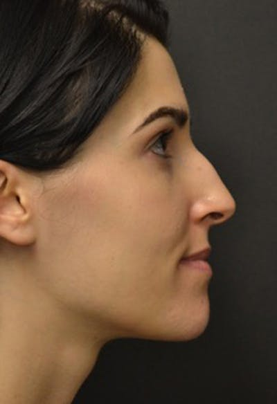 Rhinoplasty Gallery - Patient 23533023 - Image 1
