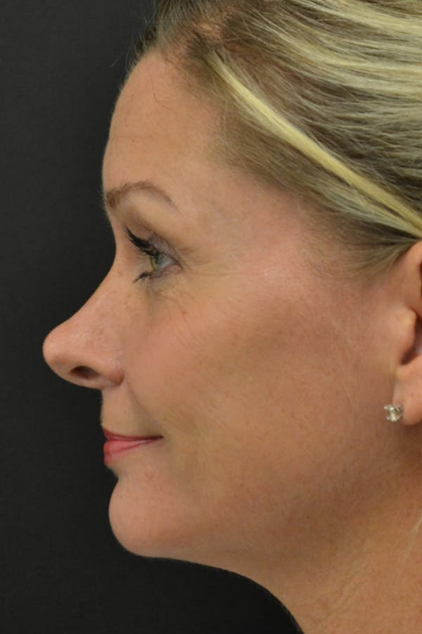 Rhinoplasty Gallery - Patient 23533027 - Image 1